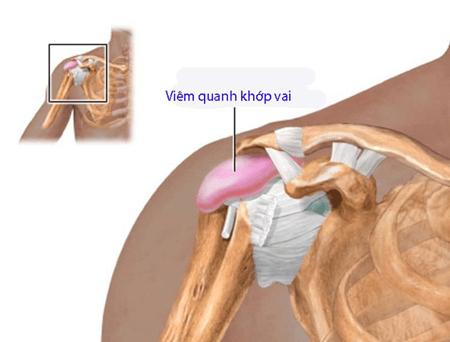 Bệnh viêm quanh khớp vai có triệu chứng nguy hiểm