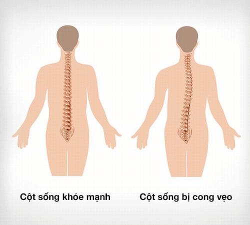 Biểu hiện của bệnh cong vẹo cột sống