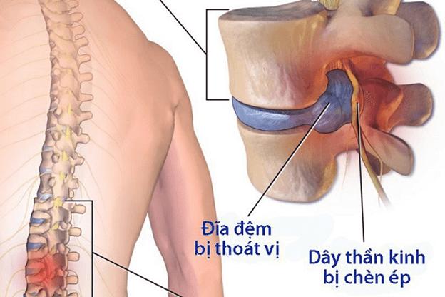 Biểu hiện của bệnh thoát vị đĩa đệm
