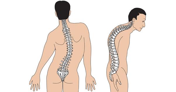 Biểu hiện của cong vẹo cột sống
