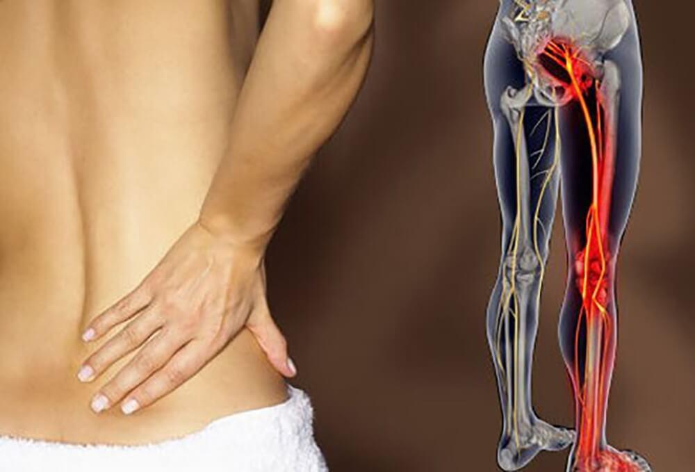 Biểu hiện của đau dây thần kinh toạ thường thấy