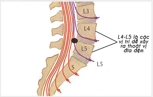 L4 L5 là các vị trí dễ xảy ra thoát vị đĩa đệm