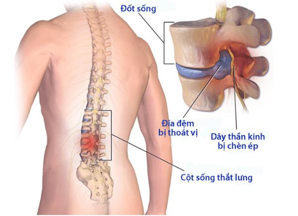 Nắn chỉnh cột sống là một phương pháp điều trị hiệu quả, an toàn