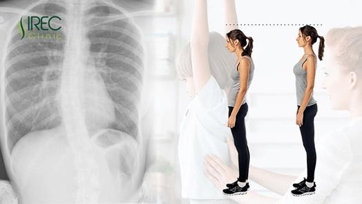 Nguyên nhân chính gây ra bệnh cong vẹo cột sống