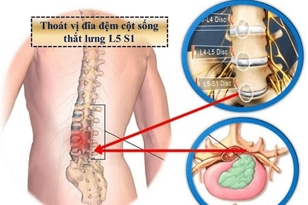 Những triệu chứng của bệnh thoát vị đĩa đệm l5 s1