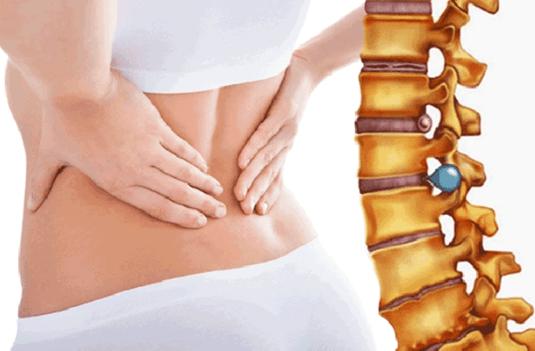 Phương pháp chữa thoát vị đĩa đệm không phẫu thuật