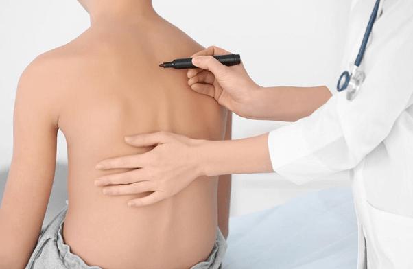 Phương pháp điều trị cong vẹo cột sống tại phòng khám IREC