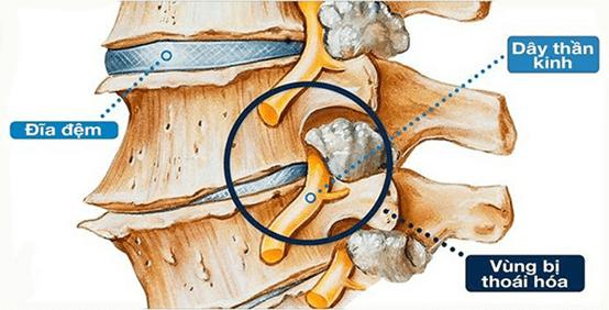 Triệu chứng của bệnh thoái hóa đốt sống lưng