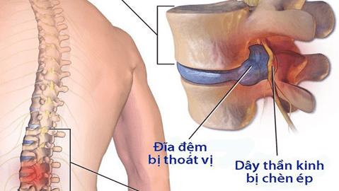 Triệu chứng của bệnh thoát vị đĩa đệm thường thấy