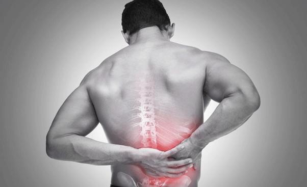 Triệu chứng đau nghiêm trọng từ bệnh thoát vị đĩa đệm l5 s1