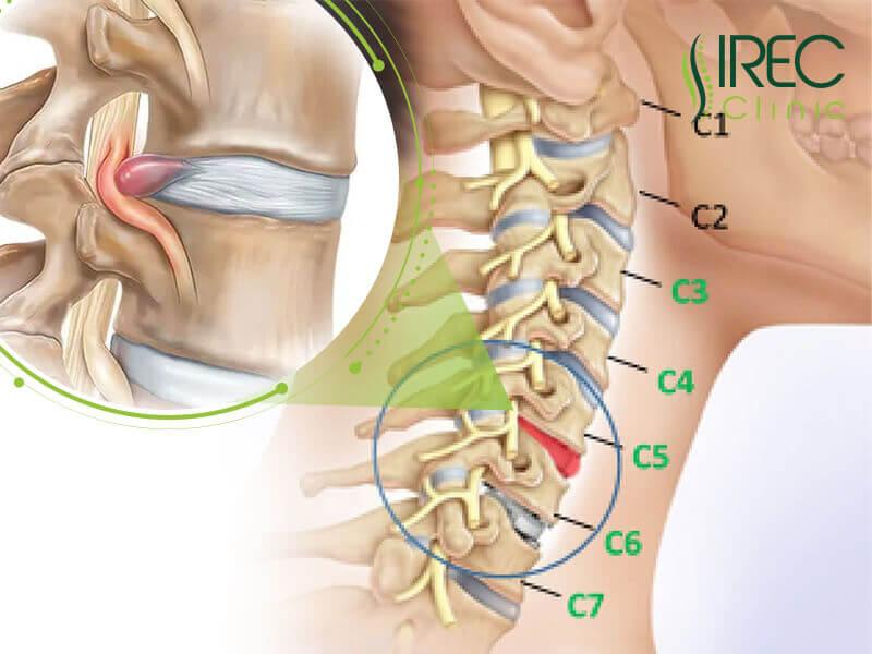 Vị trí của bệnh thoát vị đĩa đệm C5 C6 trong cơ thể