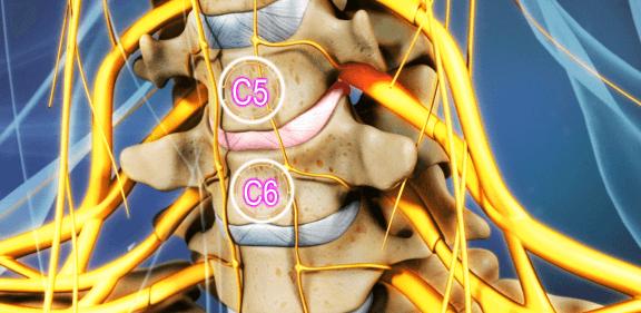 Vị trí thoát vị đĩa đệm cột sống cổ c5 c6