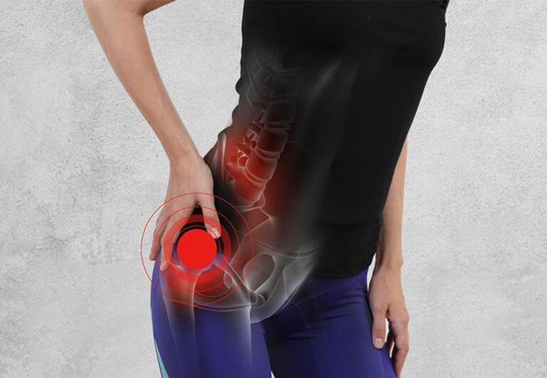 Cơn đau thần kinh tọa gây hạn chế khả năng vận động chi dưới tạm thời