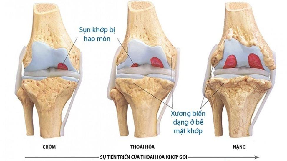 Biến chứng nguy hiểm từ thoái hóa khớp xương đầu gối
