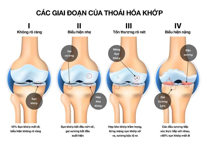 Hình ảnh minh họa cho sự tổn thương ở khớp với từng giai đoạn