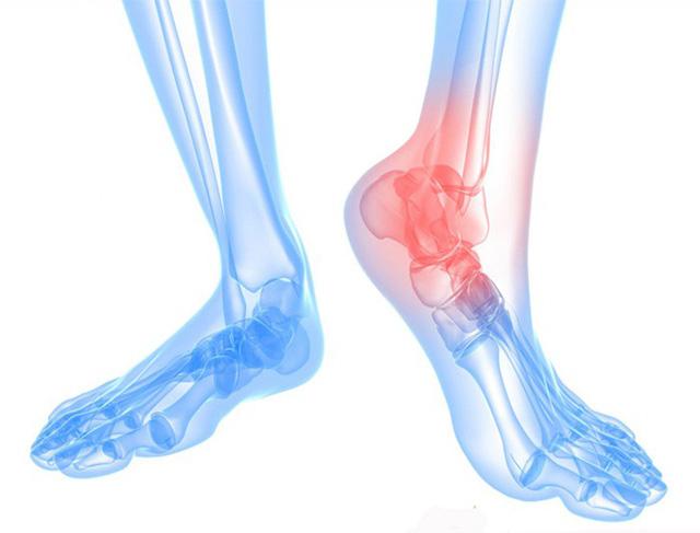 Hình ảnh minh họa vị trí Bệnh thoái hóa xương gót chân