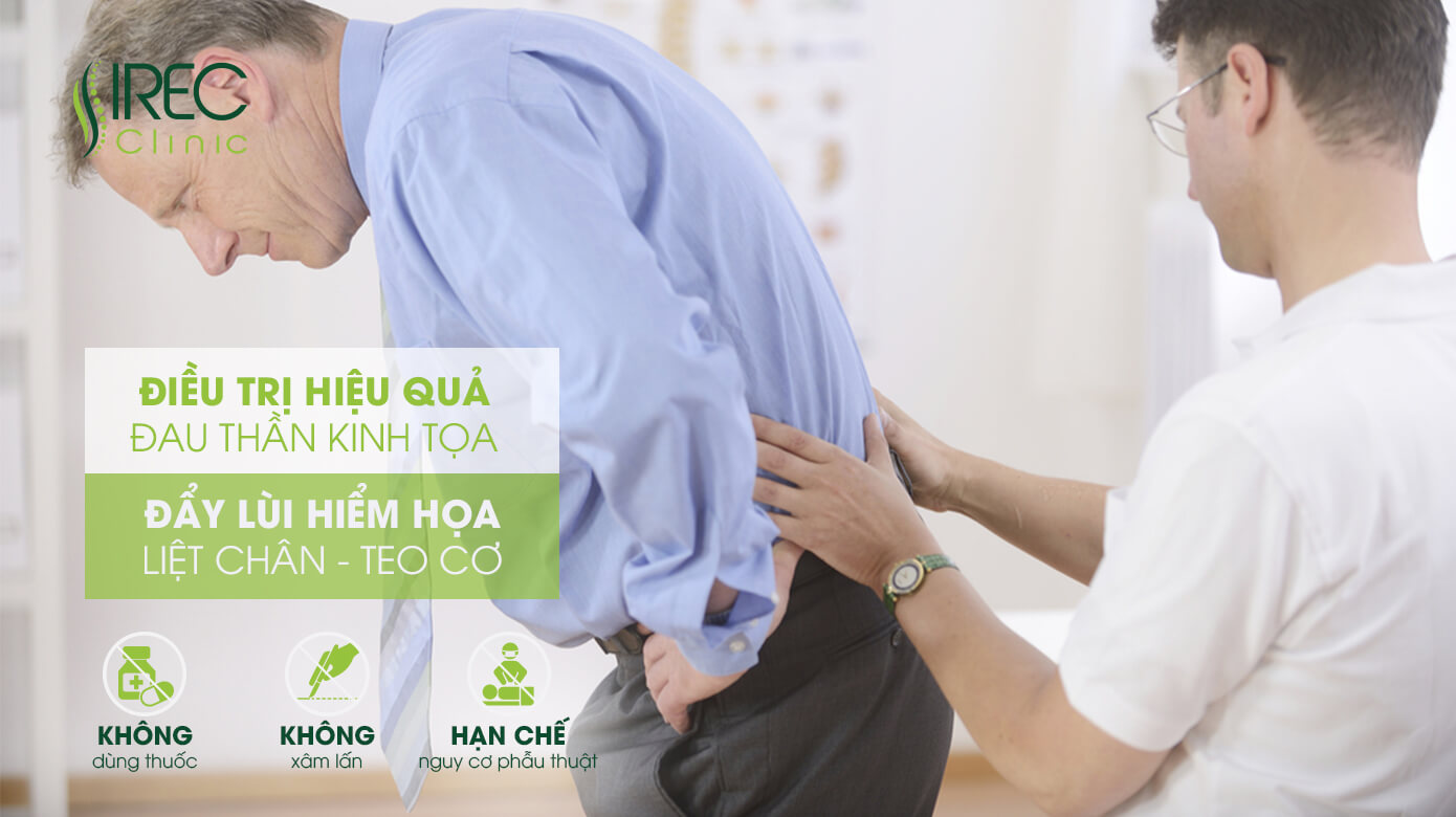 Irec Clinic điều trị Đau thần kinh tọa không xâm lấn tiêu chuẩn Quốc tế