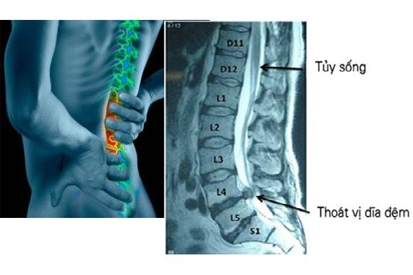 Phương pháp chẩn đoán chụp X-Quang cột sống