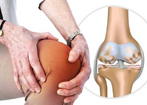 Thoái hoá khớp gây nhiều cơn đau cho người bệnh