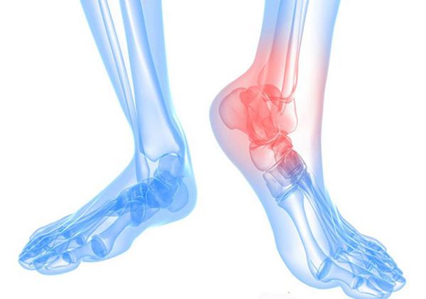 Đau nhức, khó khăn khi vận động là những khó khăn chung với những người bị Thoái hóa xương khớp chân