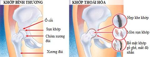 Thoái hóa xương khớp háng đang trở thành những cơn đan ám ảnh người bệnh