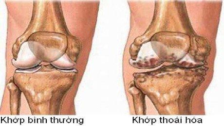 Thoái hóa xương khớp là bệnh gì?