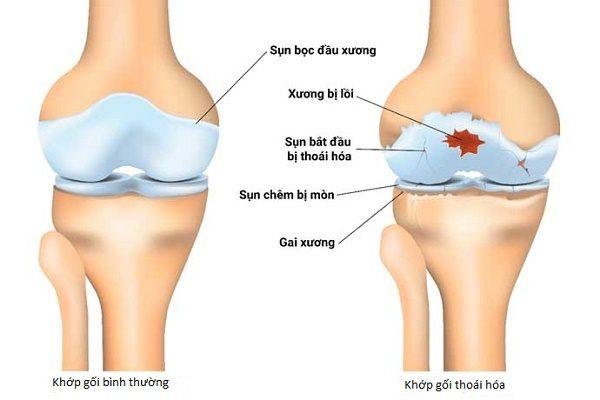 Thoái hóa xương khớp làm giảm vận động của người bệnh