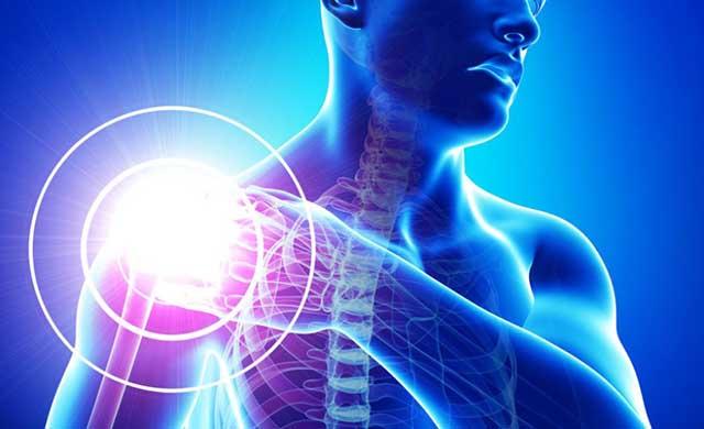 Thoái hóa xương khớp vai hạn chế rõ ràng sự vận động tại khu vực vai - cánh tay và các khu vực liên quan khác
