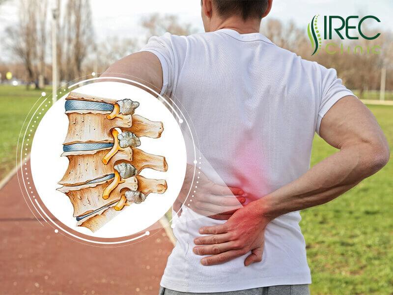 Thoái hóa xương sống lưng diễn ra từ từ nhưng để lại nhiều hậu quả khó lường