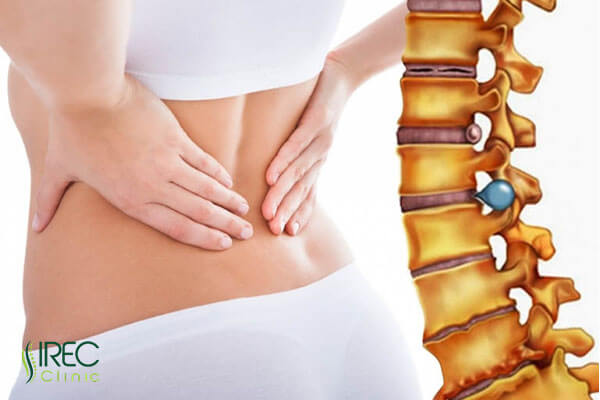 Thoát vị đĩa đệm với những cơn đau cứng gây khó chịu cho người bệnh