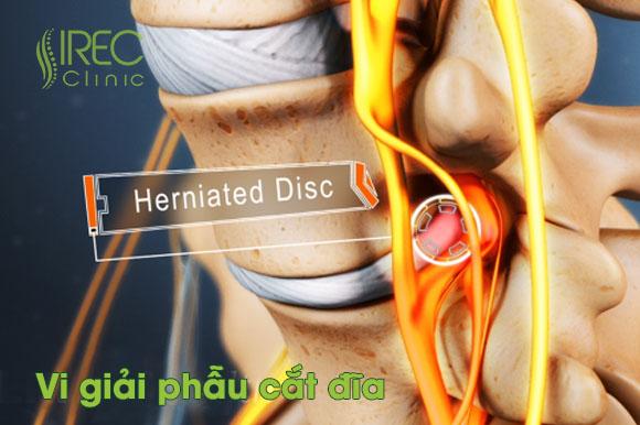 Vi giải phẫu cắt đĩa microdiscectomy